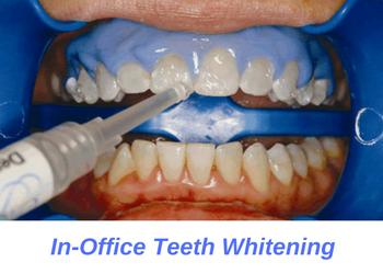 dentist-professional-teeth-whitening